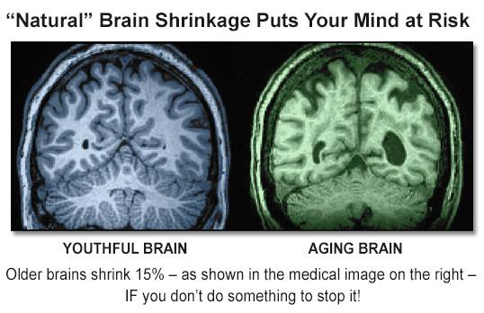 Brain Essentials: Lithium Orotate